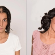 Extensions for hair loss